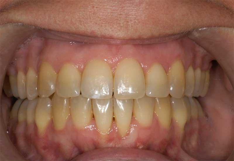 Parodontologia Laser assistita