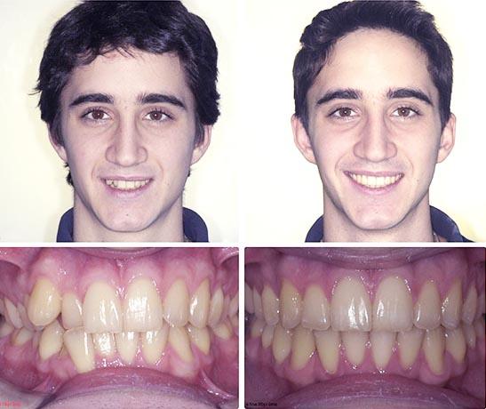 Correzione dei denti e del sorriso