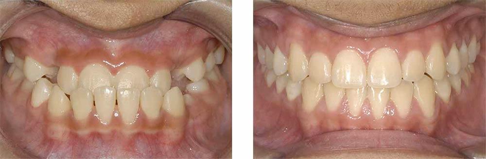 ortodonzia adulti bambini